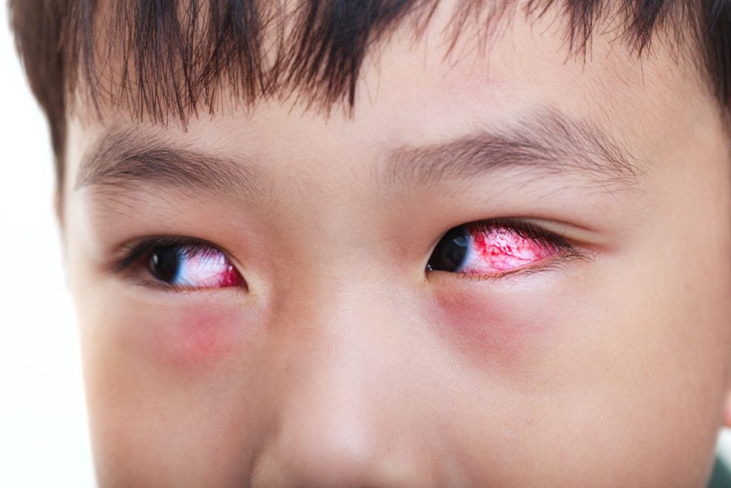 Causes and Symptoms of Pink Eye